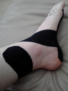 Eric's been Taping my Arch - It definitely Helps with the Pain
