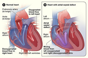 Atrial Septal Defect - Image from Wikipedia (Creative Commons Image)