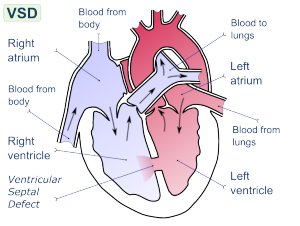 Ventricular Septal Defect (VSD) - Creative Commons Image from Wikipedia